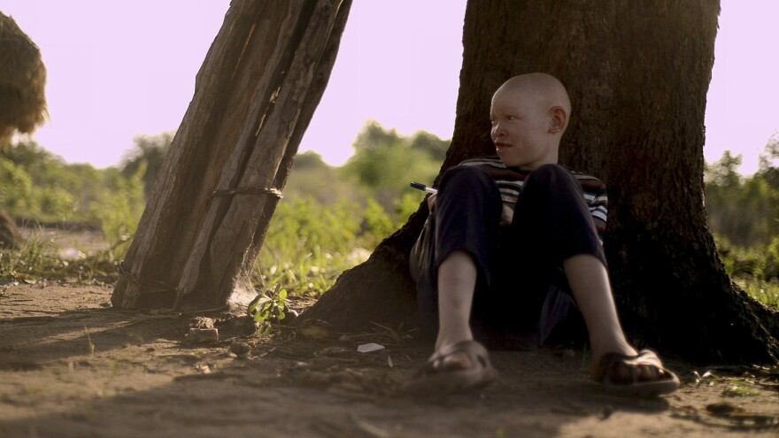 Adam Robert, a boy with albinism, draws under a tree in northern Tanzania.