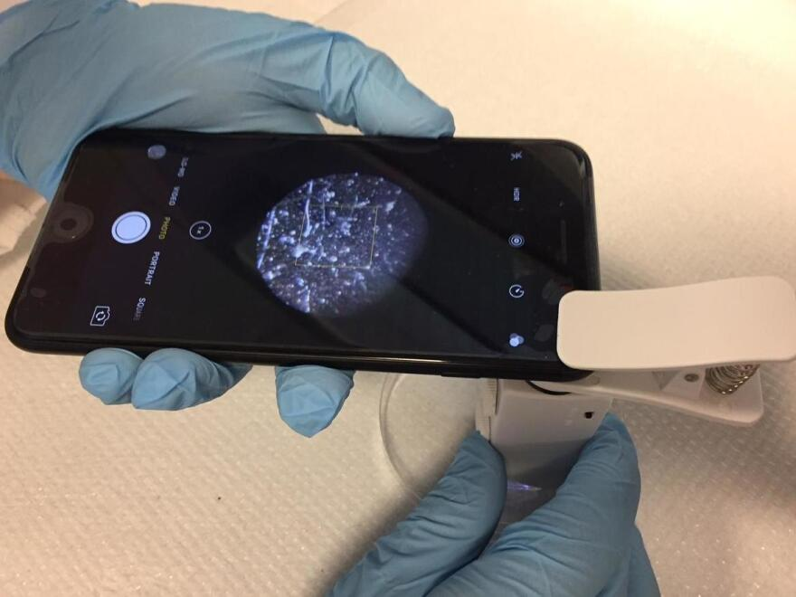 To detect bacteria, a microscope attachment clips right on to the phone's camera.