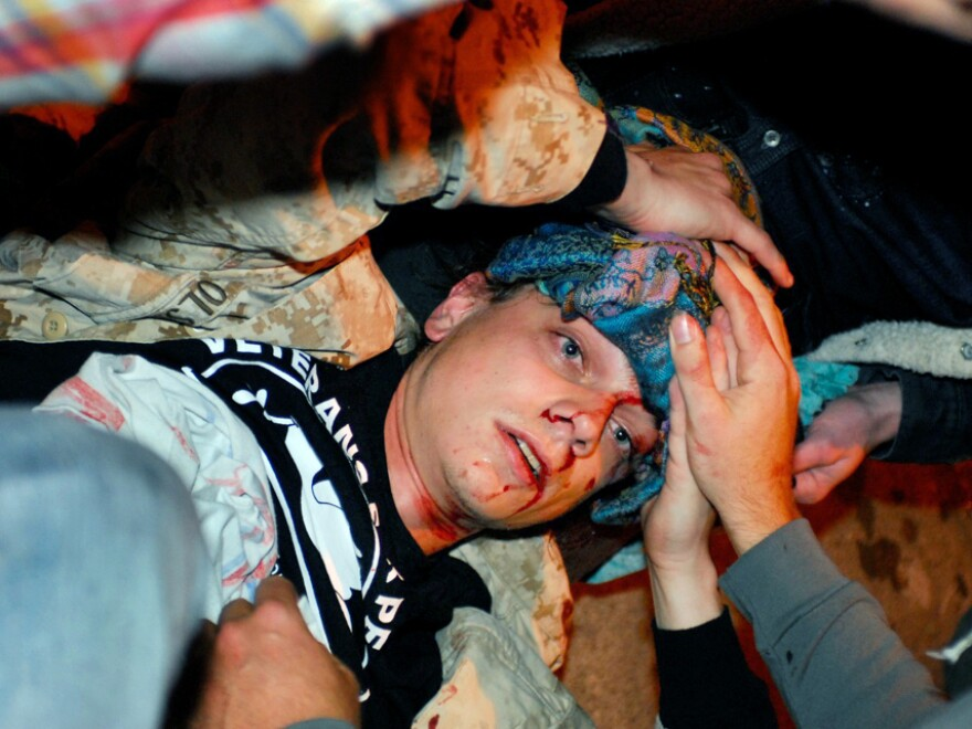 <p>Olsen lies on the ground bleeding from a head wound after being hit by a projectile during the Occupy Oakland protest on Tuesday. </p>