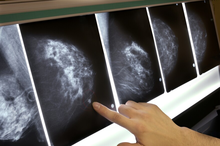 """Breasts deemed """"dense"""" in a mammogram tend to have less fatty tissue and more connective tissue, breast ducts and glands, doctors say. About 40 percent of women between the ages of 40 and 74 have dense breasts."""