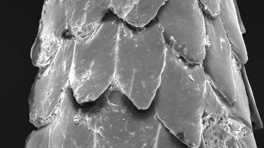 This image from a scanning electron microscope homes in on the tiny barbs on the tip of a porcupine quill.