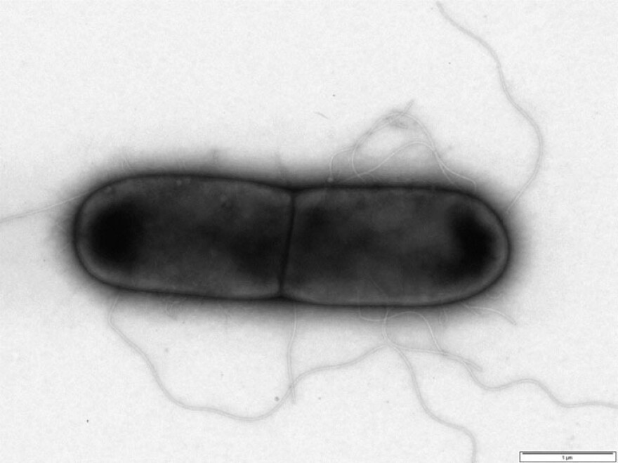 <em>Clostridium difficile</em>, a bacterium that causes severe diarrhea, can be difficult to treat with antibiotics.