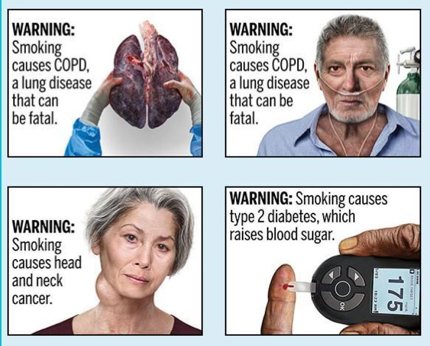 FDA warns that smoking cigarettes causes Type 2 diabetes, which raises blood sugar, among other serious health risks.