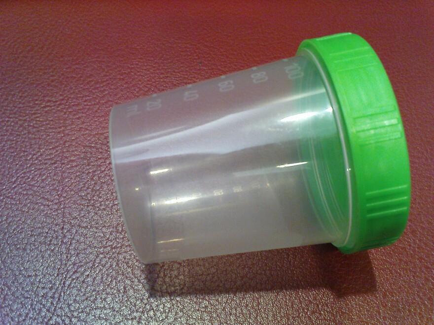 source-specimen-cup.jpg