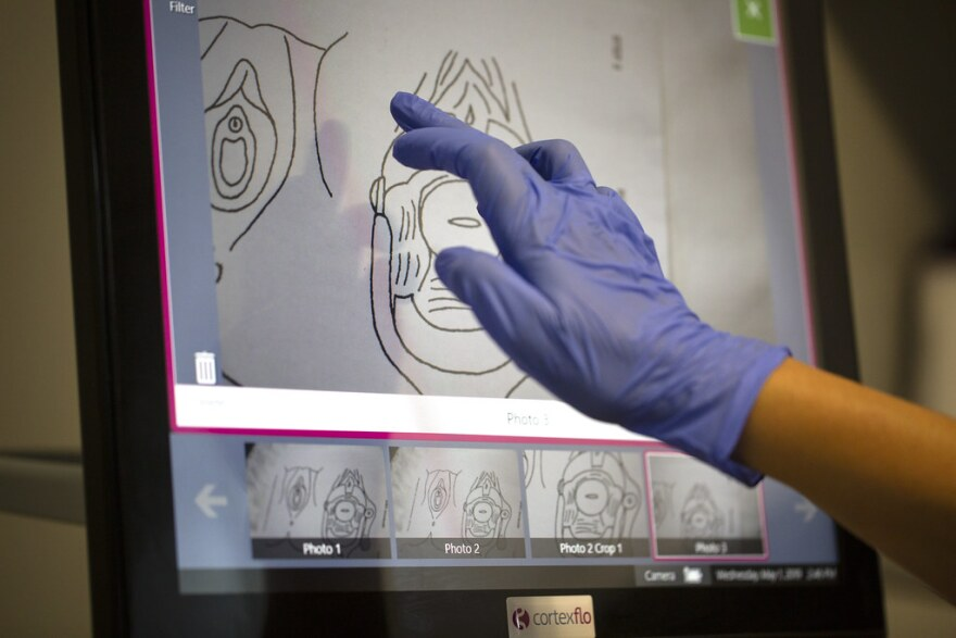 A nurse points to a screen to indicate rape-related trauma