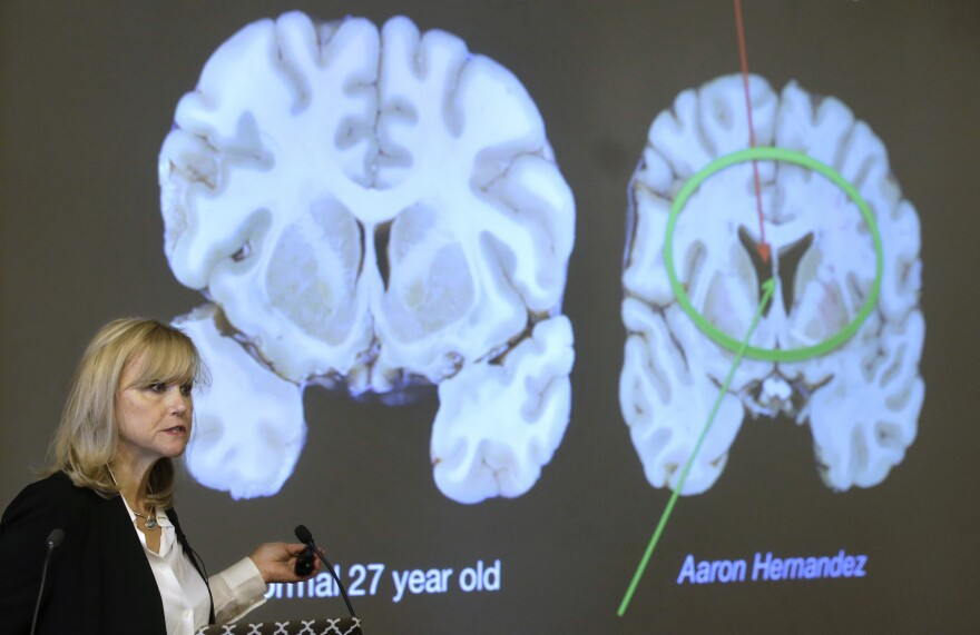 Dr. Ann McKee of Boston University talks about the severe degenerative brain disease suffered by former NFL star Aaron Hernandez. Her research team examined his brain after Hernandez died in prison.