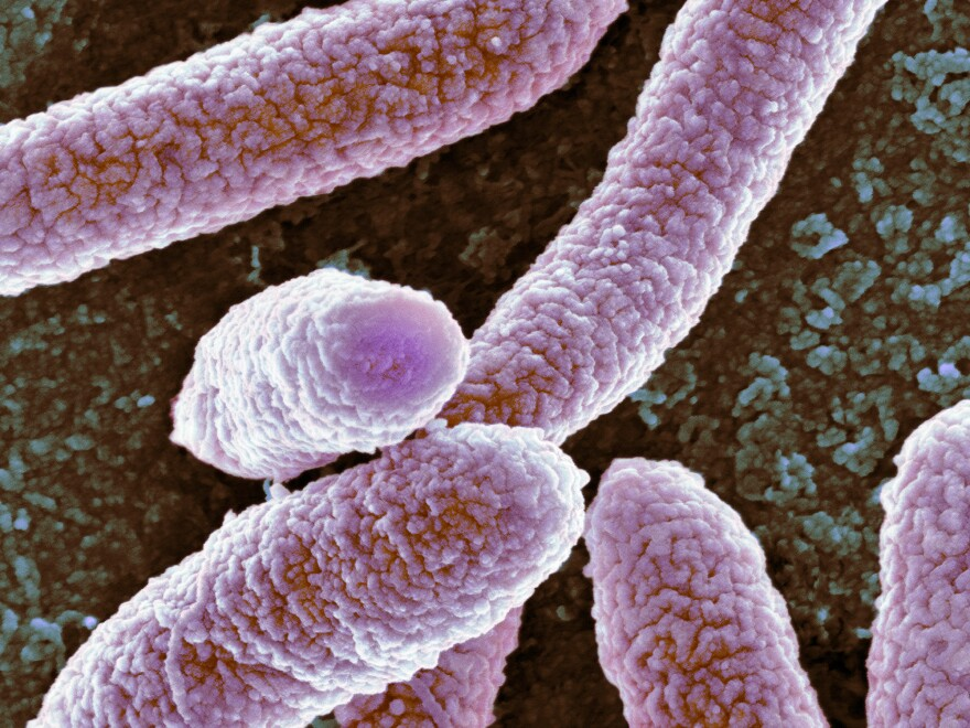 The CDC is trying to stop E. coli and other bacteria that have become resistant to antibiotics because they can cause a deadly infection.