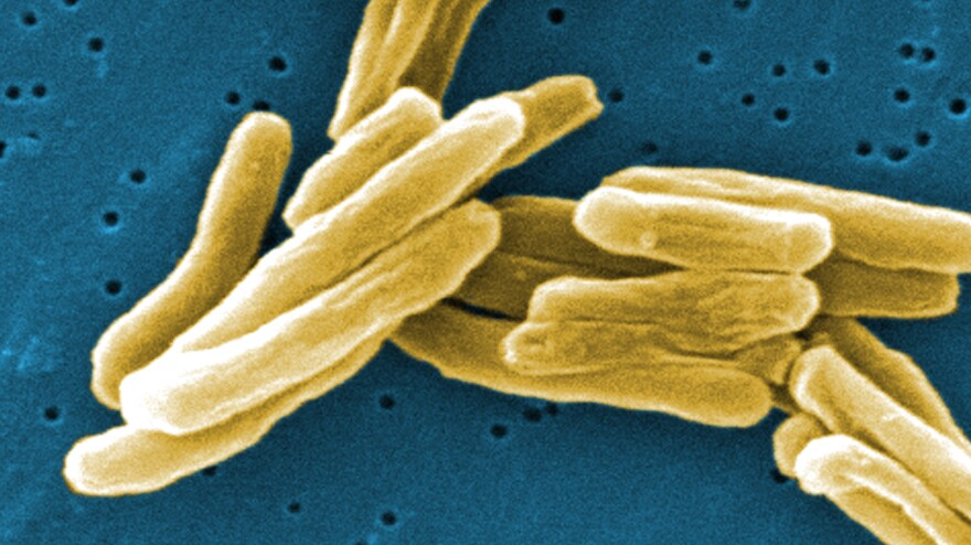 Under the microscope, <em>Mycobacterium tuberculosis</em> bacteria. The germs that cause TB have become resistant to many drugs.