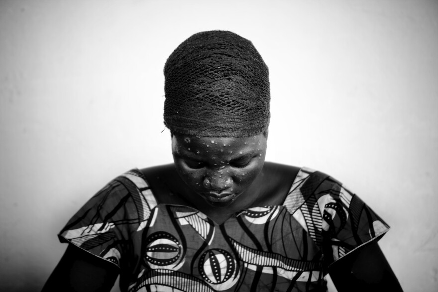 A woman shows symptoms of monkeypox in 2008 in the Democratic Republic of Congo.