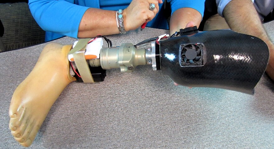The Aquilonix Prosthesis Cooling System.