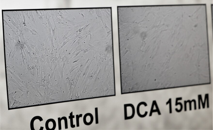 Poster has a gray image on it with some dots.