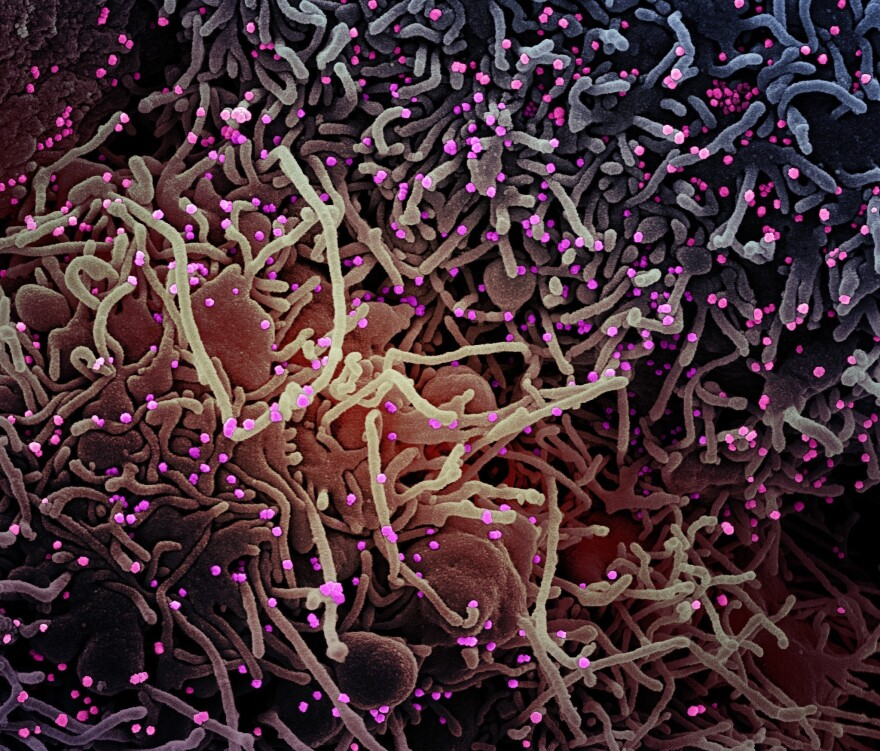 This image made by a scanning electron micrograph shows SARS-COV-2 virus particles (colorized pink) from a patient sample. There are various studies looking at changes to the virus genome — and the possible impact on how the virus affects humans.