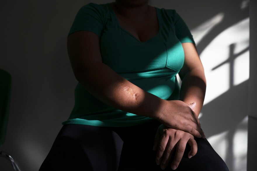 Alejandrina says that when she was 14, a cousin cut her arm and body with a machete after she came out to her family. She and her partner decided to leave Honduras this year. Alejandrina's partner and son were allowed into the U.S. but Alejandrina was sent back to Mexico.