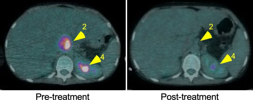 Six weeks after phage treatment, a PET CT scan showed a reduction of infection (pink) in Carnell-Holdaway's liver and improvement in the liver function.