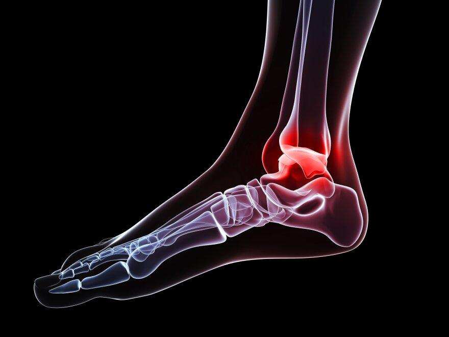 Ankle pain, conceptual computer artwork.