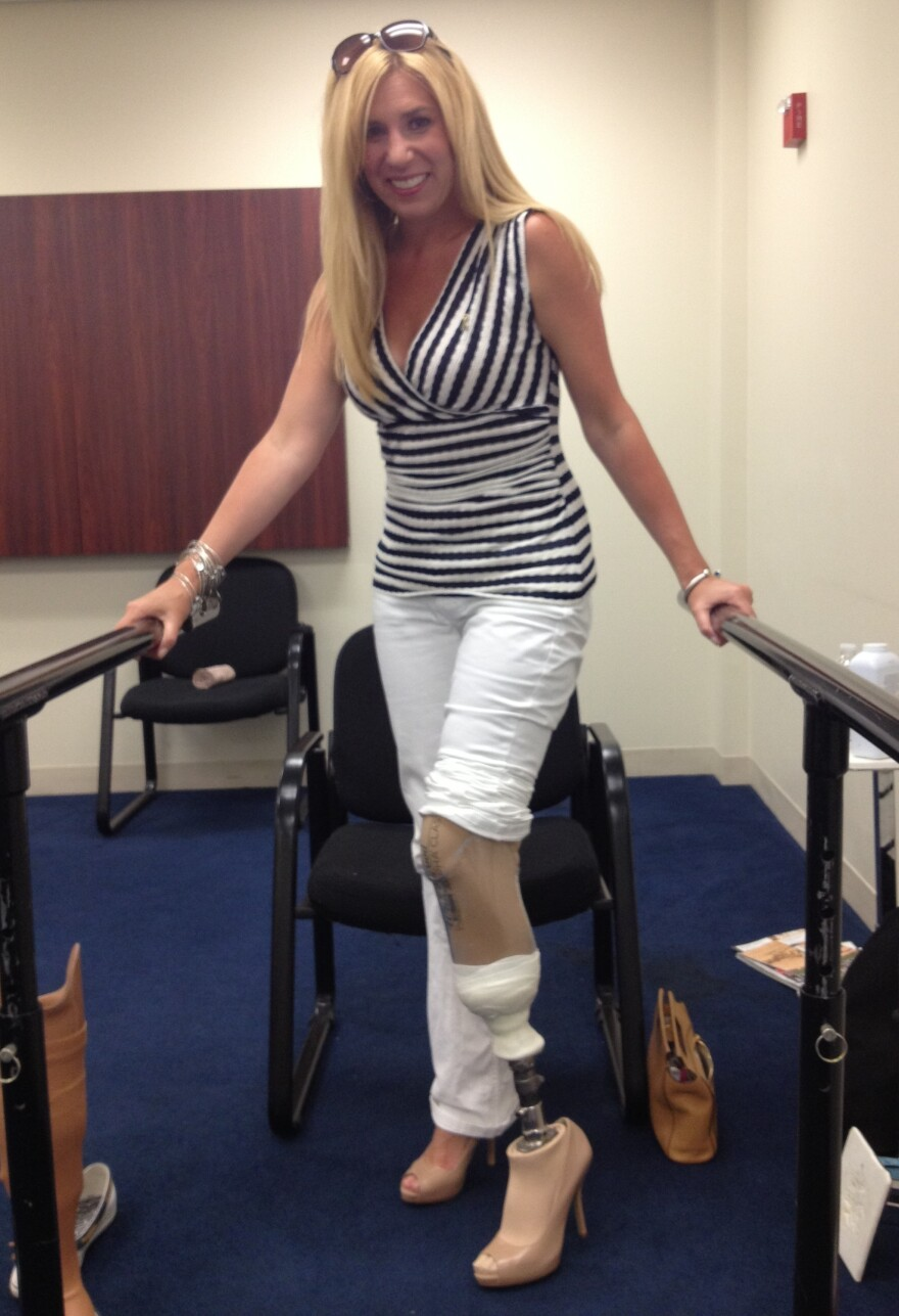 """Heather Abbott tests out a high-heeled prosthetic to see if she can walk in heels. """"No problem!"""" she says."""