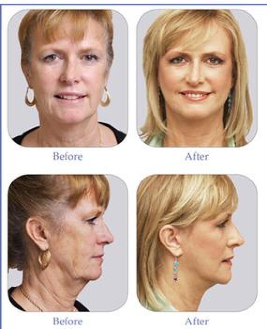 before-after-lifestyle-lift_medium.jpg
