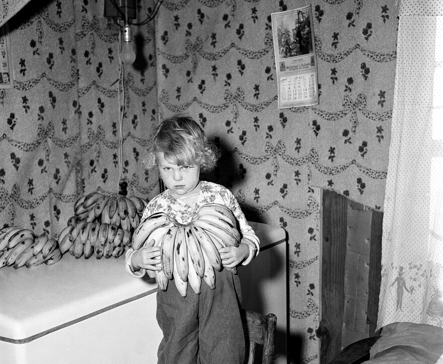 Susan Morgan, age 5, holds a bunch of bananas in Ponchatoula, La., in 1955. Susan was diagnosed with celiac disease and was prescribed a diet of 200 bananas weekly.