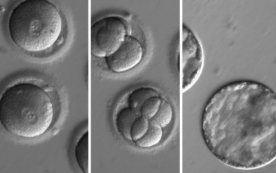 This sequence of images shows the development of embryos formed after eggs were injected with both CRISPR, a gene-editing tool, and sperm from a donor with a genetic mutation known to cause cardiomyopathy.