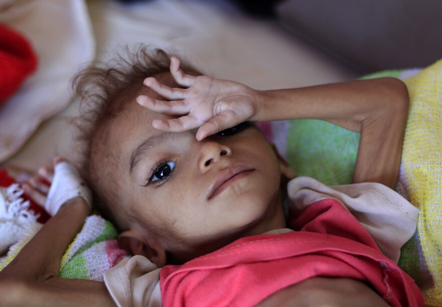 A Yemeni child suffering from malnutrition lies on a bed at a treatment center in a hospital in the capital, Sanaa.