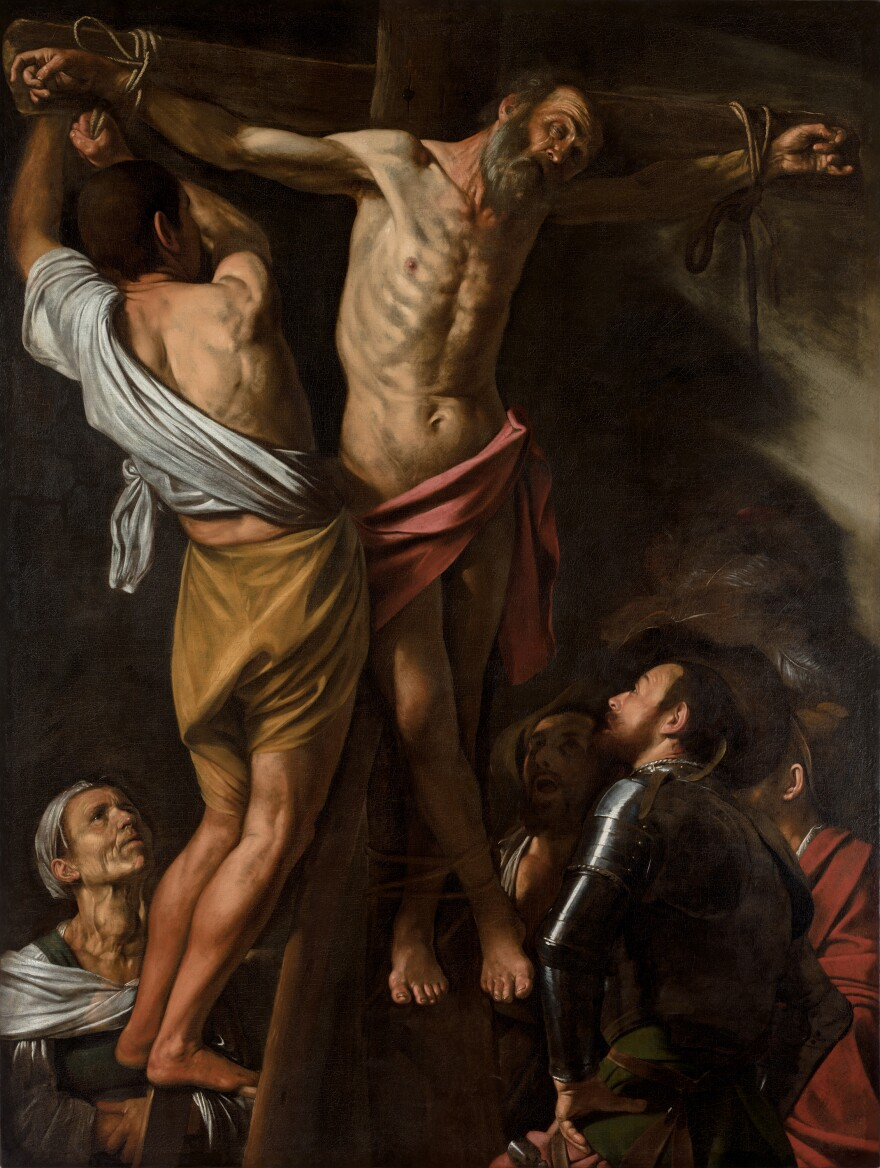 Caravaggio's painting <em>The Crucifixion of St. Andrew</em> portrays an enlarged thyroid in one of the bystanders.