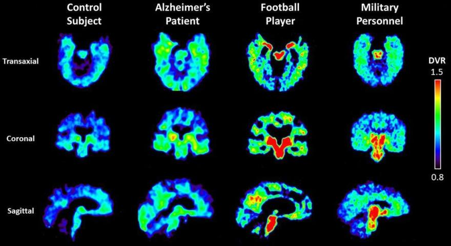 UCLA researchers are using a radioactive tracer, which binds to abnormal proteins in the brain, to see if it is possible to diagnose chronic traumatic encephalopathy in living patients. Warmer colors in these PET scans indicate higher concentrations of the tracer.