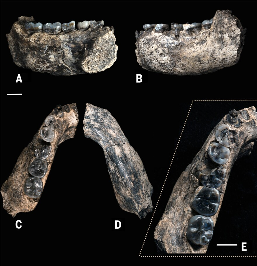 Five views of the fossilized jawbone highlight teeth that are becoming more slender, scientists say, relative to the blocky, more apelike teeth of <em>Australopithecus.</em>