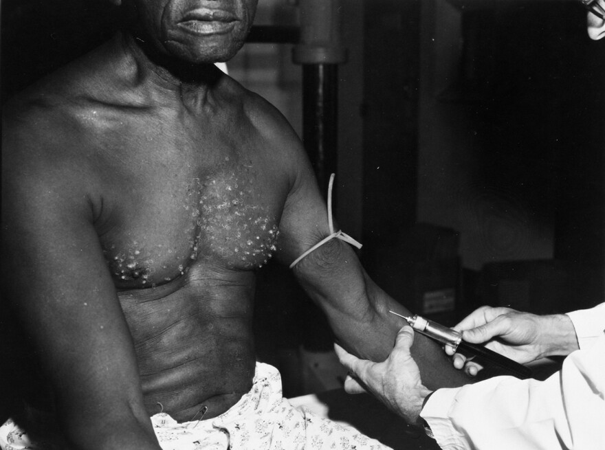 A man receives an injection during the Tuskegee Syphilis Study in the 1930s. The U.S. Public Health Service recruited hundreds of rural Black men in 1932 in Tuskegee, Ala. They would offered free meals and checkups, but never explained that participants would be human subjects in a study designed to withhold medical treatment.