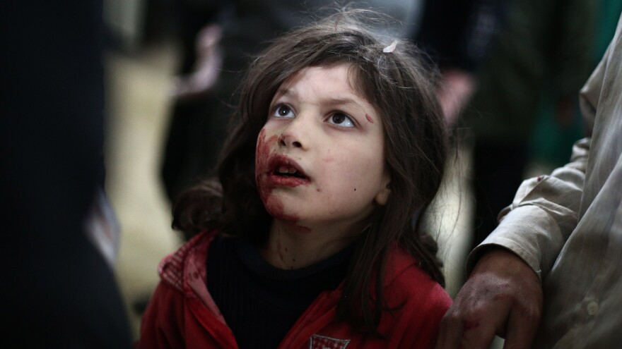 Citing violence and a refugee crisis in Syria and elsewhere, Amnesty International says international groups haven't done enough to help. Earlier this month, an injured Syrian girl was treated at a makeshift clinic, after government air strikes on a rebel-held area northeast of Damascus.