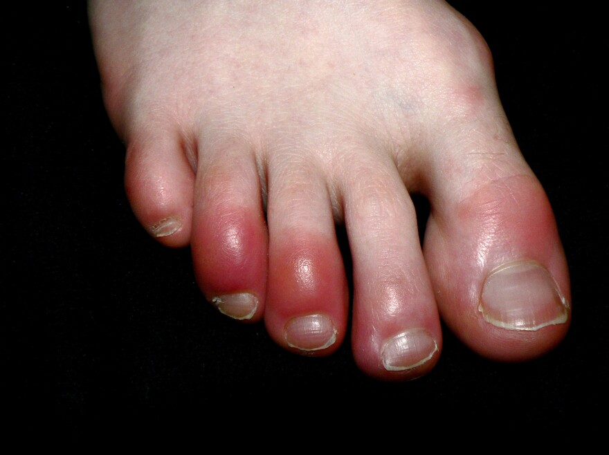 """Chilblains (pictured) are itchy, red, pink or purple inflammations of the skin's small blood vessels that can develop in body parts such as toes and fingers from exposure to colder temperatures or wet conditions. A similar-looking inflammation of the toes is an emerging symptom of COVID-19 and is being referred to as """"COVID toes."""""""