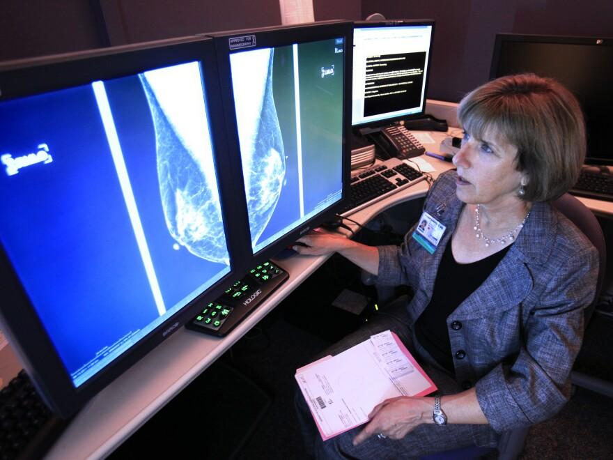 Dr. Karen Lindsfor, a radiologist at the University of California, Davis, Medical Center, reads a mammogram in Sacramento, Calif.