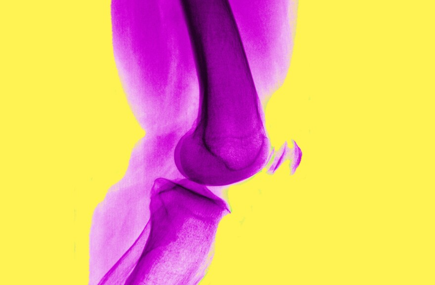 Arthritis of the knee is very common, and isn't helped by arthroscopic surgery, a study finds.