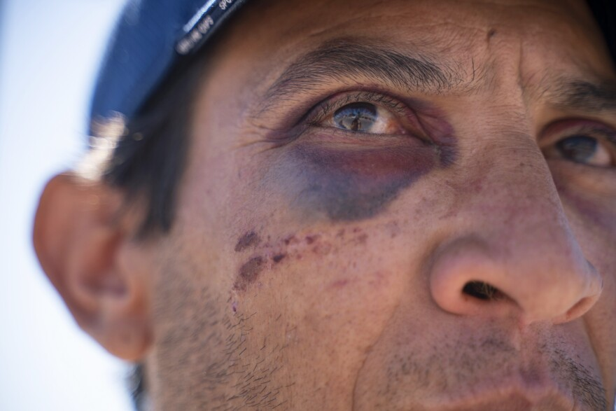 Serafin Aguilera Perez, 39, from Havana, Cuba, shows bruises on his face that he says he sustained after he was attacked by two people who tried to take money that his sister had wired to him.