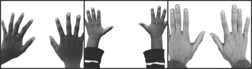 Damon Davis hands up