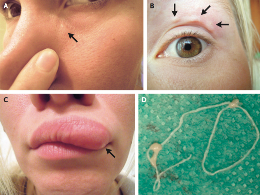 The <em>New England Journal of Medicine</em> uses selfies in a paper describing a parasitic worm called <em>Dirofilaria repens</em>.<em> </em>The paper says a Moscow woman visited a rural area and was bitten by mosquitoes. She soon noticed a nodule moving around her face, which she documented with the above photos. The paper says a physician used a forceps to remove the worm (also shown above).