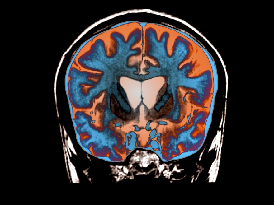 An MRI scan shows signs of atrophy in the brain of a patient with Huntington's disease.