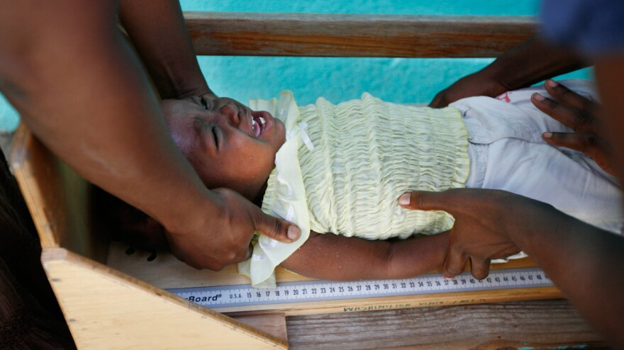 Renande Raphael, aged 16 months, is measured to check whether she is growing normally. As part of a new trial, she's receiving an extra daily snack of enriched peanut butter.