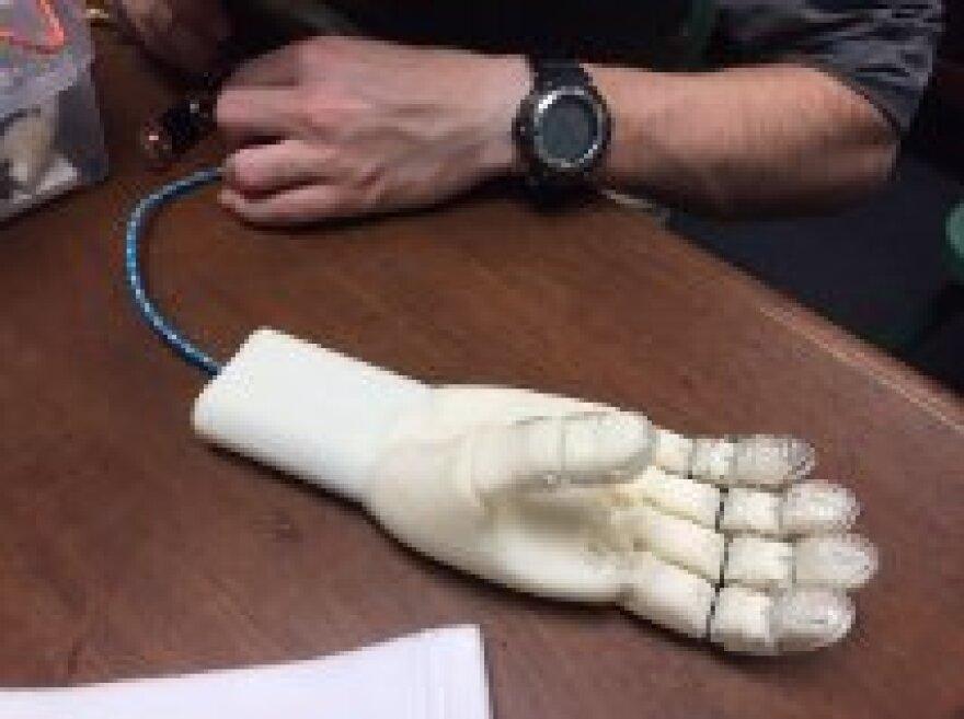 prosthetic_hand.jpg