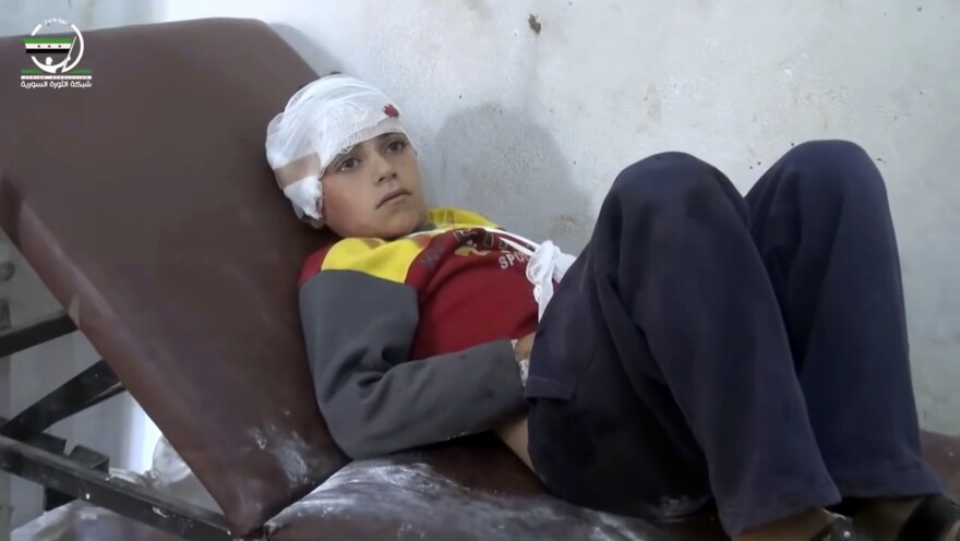 A child with a bandaged head lies in a hospital bed after deadly airstrikes Wednesday in the northern, rebel-held village of Hass, Syria.