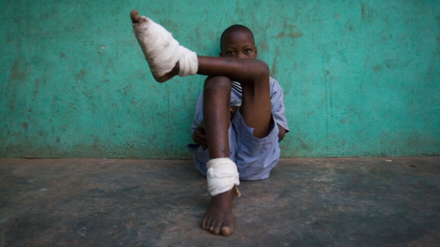 A boy with multiple Guinea worms sits outside a containment center in northern Ghana, February 2007.
