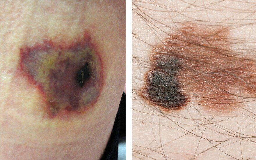 A recluse spider bite (left) can be confused with skin cancer.