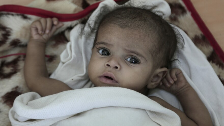 In this Feb. 10, 2018 photo, a 9-month-old malnourished child is checked by a nurse at a hospital in Yemen. Houthi rebels say they have begun withdrawing from strategic ports to allow aid into the country.