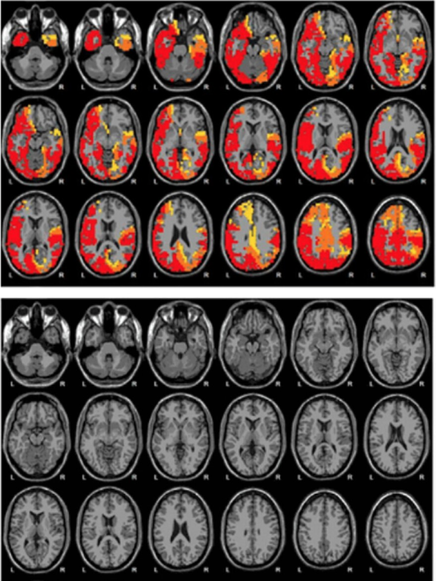 """Brain scans from Emerald show what it claims to be before (top) and after (bottom) images of a woman's brain following NAD treatment. The images appear in an Emerald brochure, including text that says, """"The brain is more calm after 12 days of NAD Amino Acids Therapy."""""""