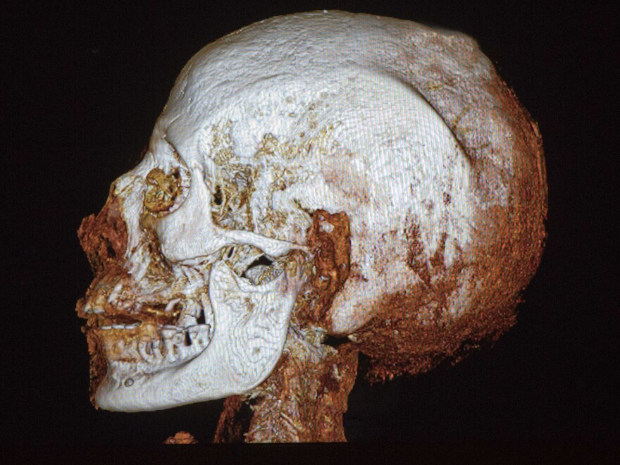 A CT scan of the skull of a 2,200-year-old Egyptian mummy on display in the Israel Museum in Jerusalem shows osteoporosis and tooth decay, the museum said Tuesday.