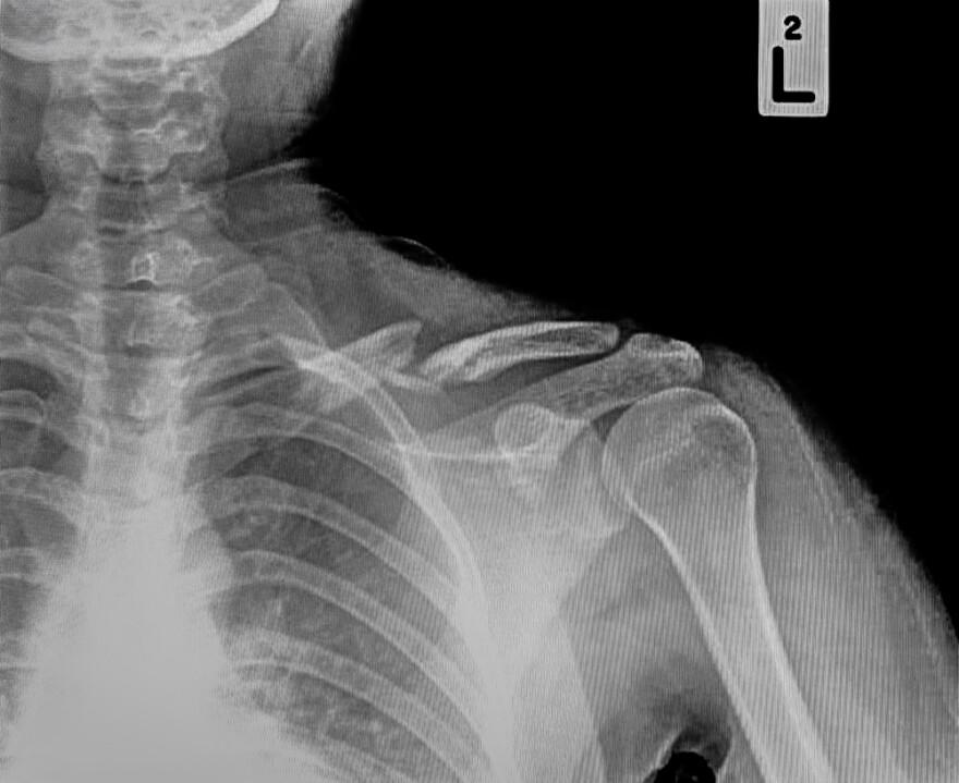 shoulder_fracture.jpg