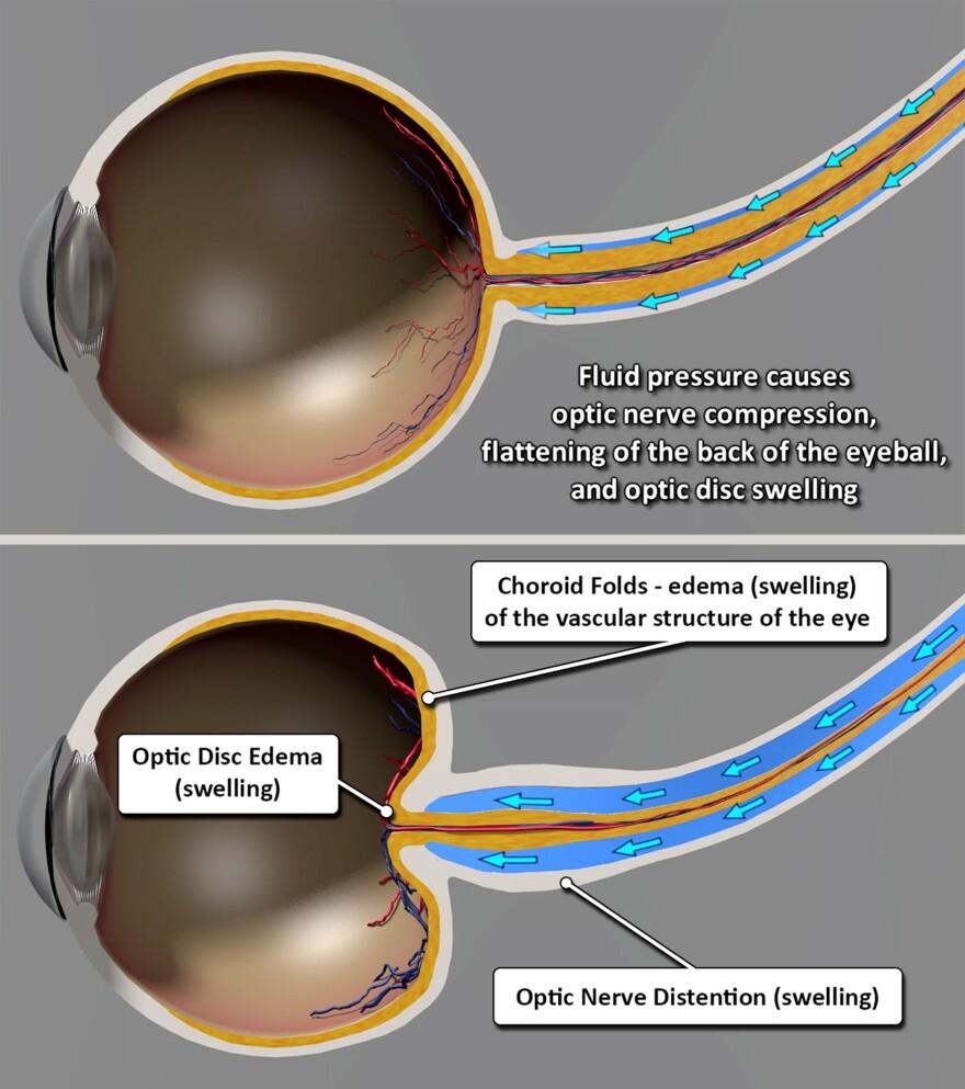 eye_illustration.jpg