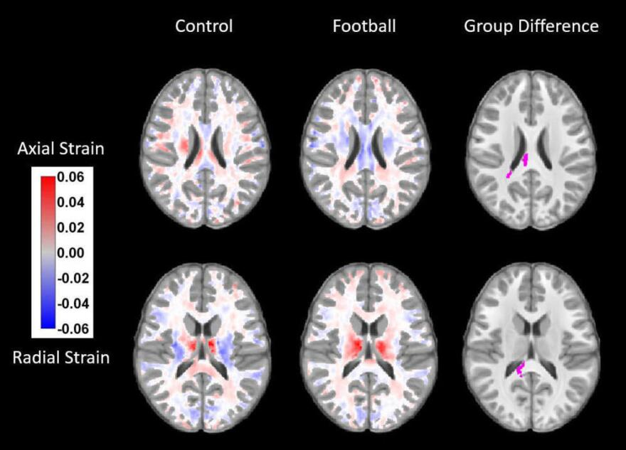 A series of MRI images shows the signs of strain in nerve fibers following a season of football.