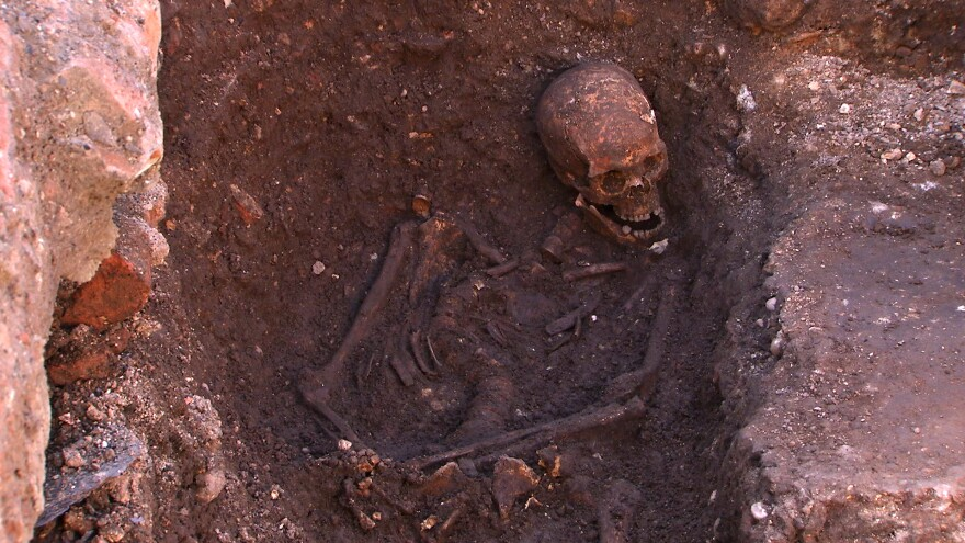 The remains of King Richard III, found in an archaeological dig in Leicester, England, revealed a twisted spine.