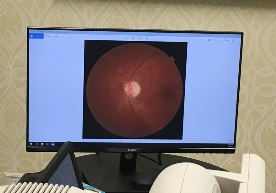 A retinal scan is displayed at University Medical Center in New Orleans using software detects is called diabetic retinopathy.