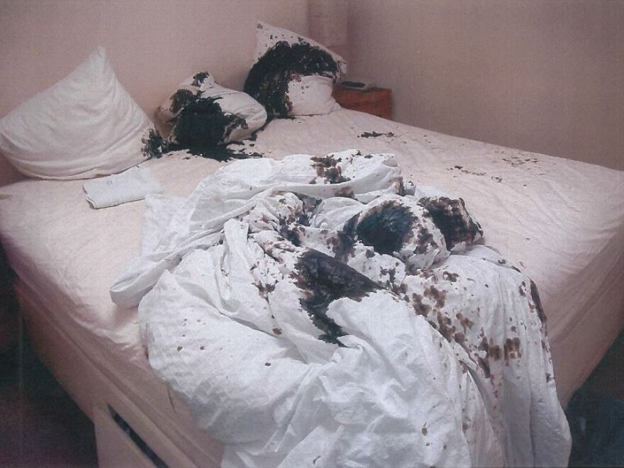 U.K. Police provided this photograph of the bedding following the acid attack in Bristol.